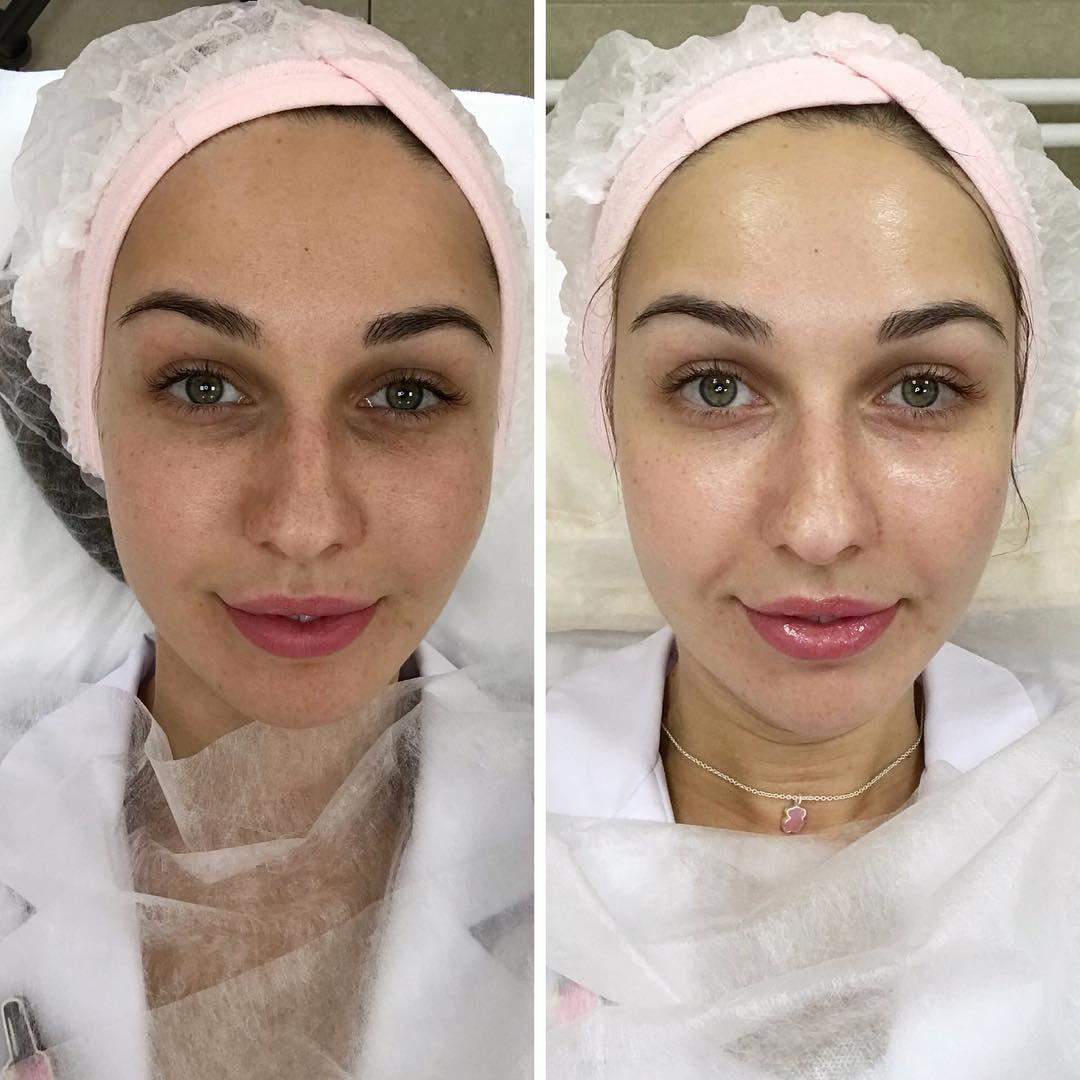 Традиционное субботнее «До/После» от сертифицированного косметолога